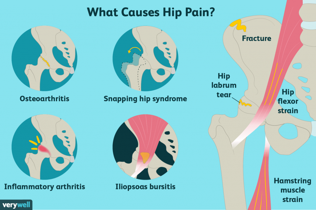 hip pain and joint replacement